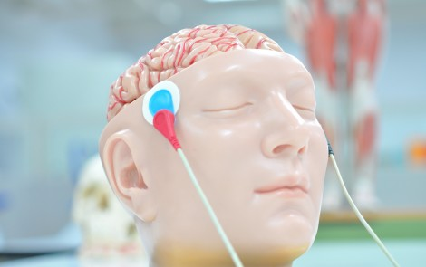 Brain Stimulation May Ease Pain of Fibromyalgia, Help With Fatigue