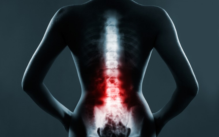 fibromyalgia study of spinal compression