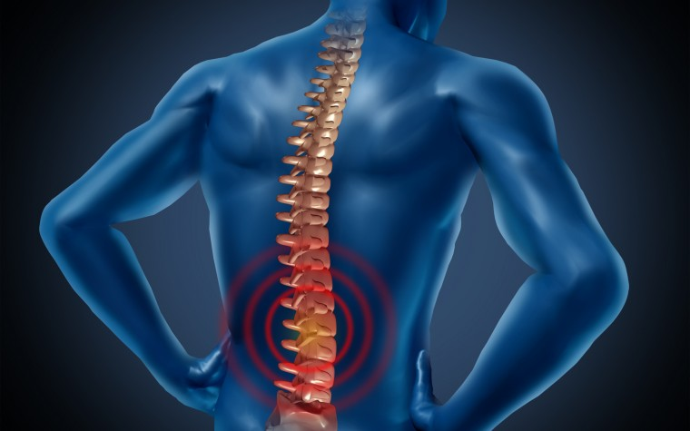 Fibromyalgia and the spinal cord