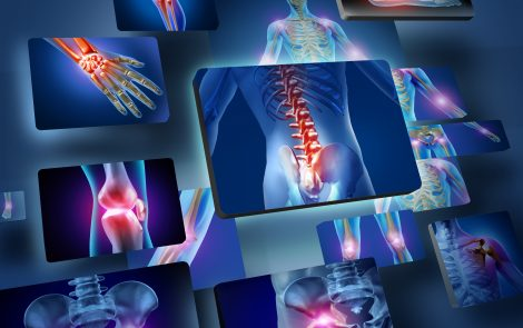 Fibromyalgia May Frequently Occur Along with a Variety of Other Diseases, Review Finds