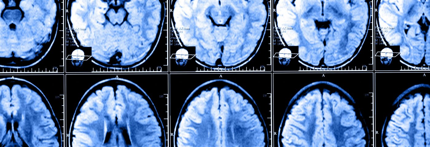 Researchers Identify Fibromyalgia Brain Signature that Might Improve Diagnosis, Treatment