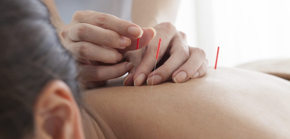 Skeptical at First, Acupuncture Soothed My Fibromyalgia Symptoms