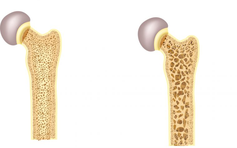 fibromyalgia and osteoporosis
