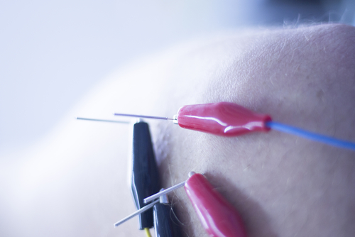 Electroacupuncture for fibromyalgia