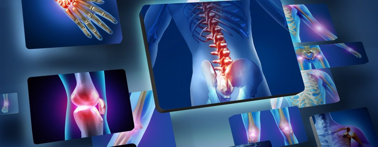 Number of Adults with Arthritis Continues to Increase, CDC Reports