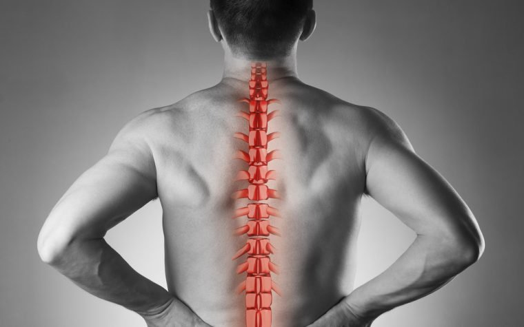 inflammatory spine condition axial spondyloarthritis