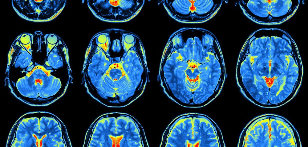 Brain Inflammation Imaged for First Time in Fibromyalgia Patients, Study Reports
