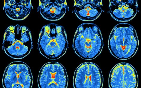 Brain Stimulation plus Cognitive Training Boosts Memory, Verbal Fluency in Women with Fibromyalgia, Study Shows