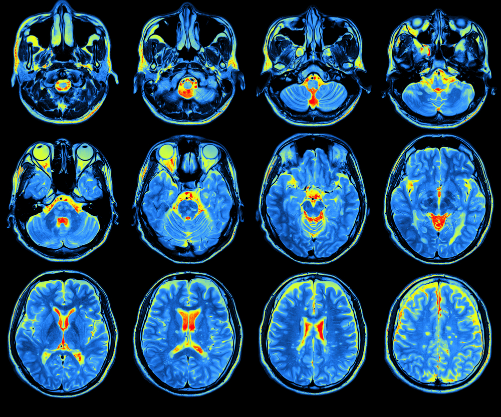 Brain Changes May Explain Chronic Pain Symptoms in Different Disorders