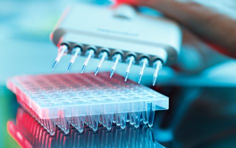 Biomarkers in Saliva of Fibromyalgia Patients May Be Diagnostic Tool