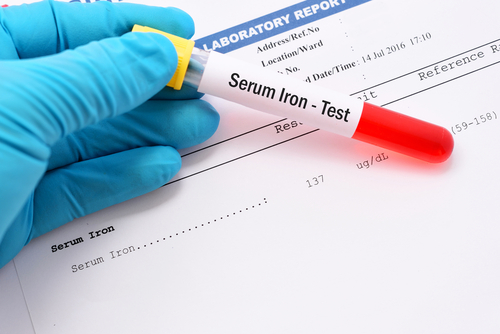 Injectafer Iron Replacement Therapy Safely Improves Fibromyalgia Symptoms, Phase 2 Study Finds