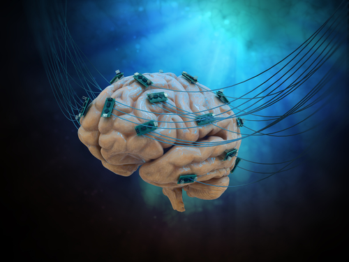 Noninvasive Brain Electrical Stimulation Lacks Effectiveness in Fibromyalgia, Study Suggests